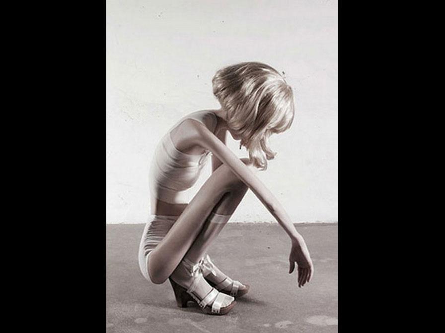 anorexia-nevroza-1